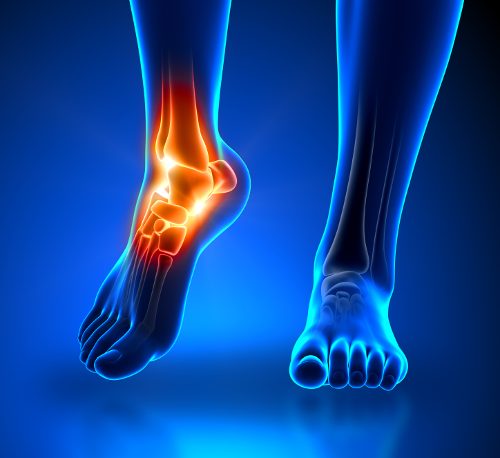Foot Pain: What is Causing It?